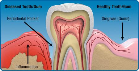 tandkødssygdomme